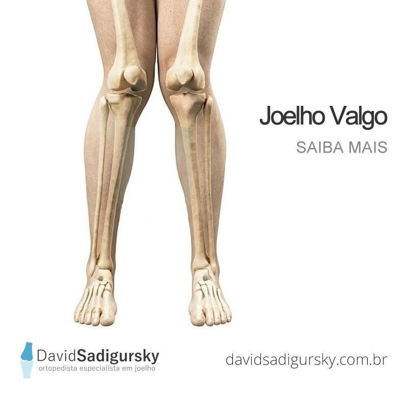Joelho Valgo