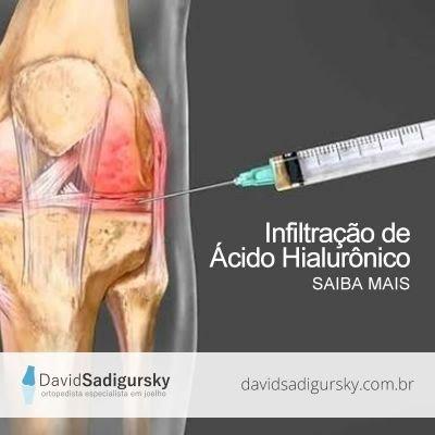 Infiltração de Ácido Hialurônico